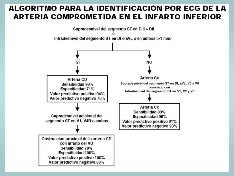1.BCRD E INFARTO.2.BCRI E INFARTO. 3.BCRI Y ALTERACIONES 1º DE LA REPOLARIZACIÓN.