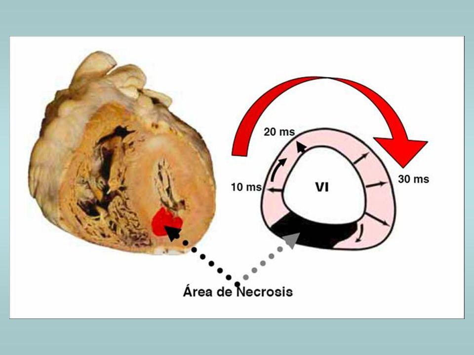 BLOQUEO DE RAMA DERECHA E INFARTO No modifica la parte inicial del QRS y no afecta la interpretación cualquiera sea su localización.