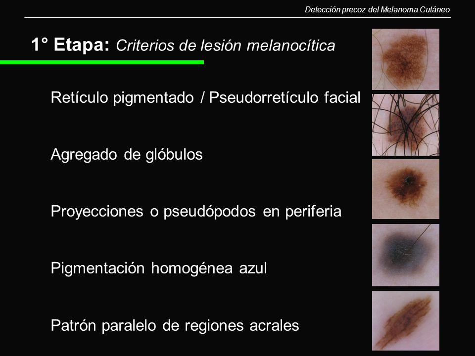 1° Etapa: Criterios de lesión melanocítica Retículo pigmentado / Pseudorretículo facial Agregado de glóbulos Proyecciones o pseudópodos en periferia P
