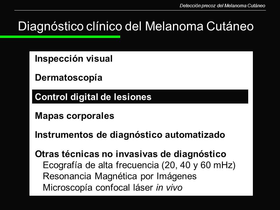 Diagnóstico clínico del Melanoma Cutáneo Inspección visual Dermatoscopía Mapas corporales Instrumentos de diagnóstico automatizado Otras técnicas no i