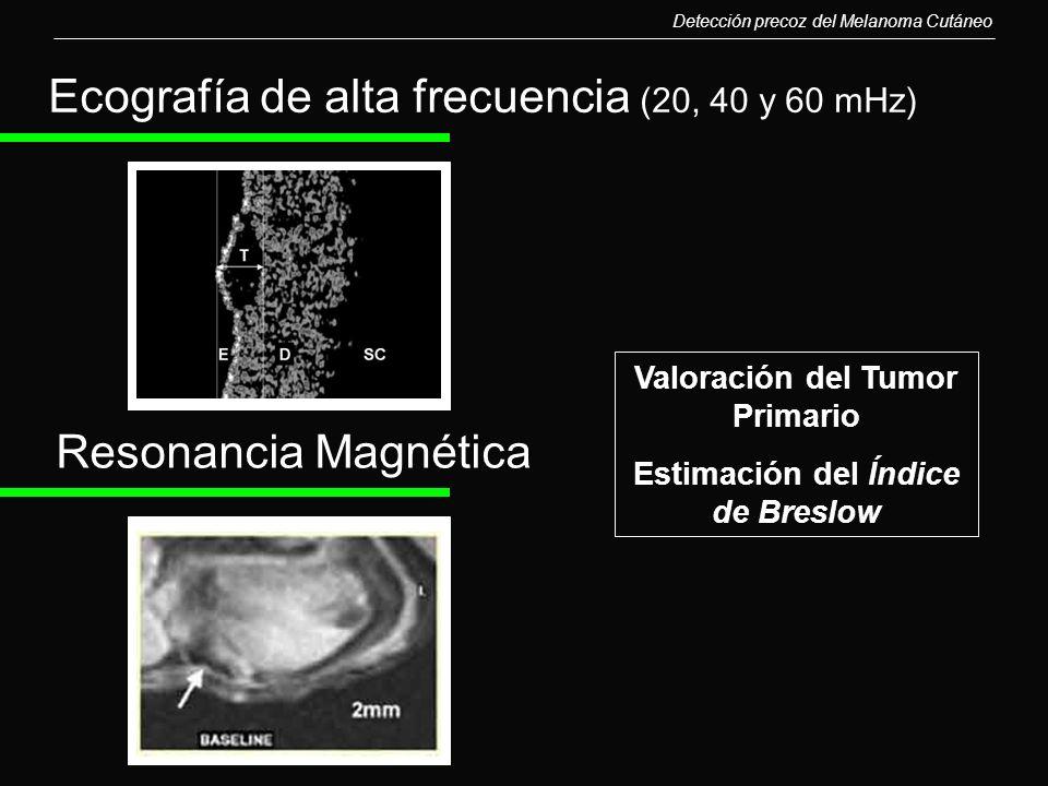 Detección precoz del Melanoma Cutáneo Ecografía de alta frecuencia (20, 40 y 60 mHz) Resonancia Magnética Valoración del Tumor Primario Estimación del