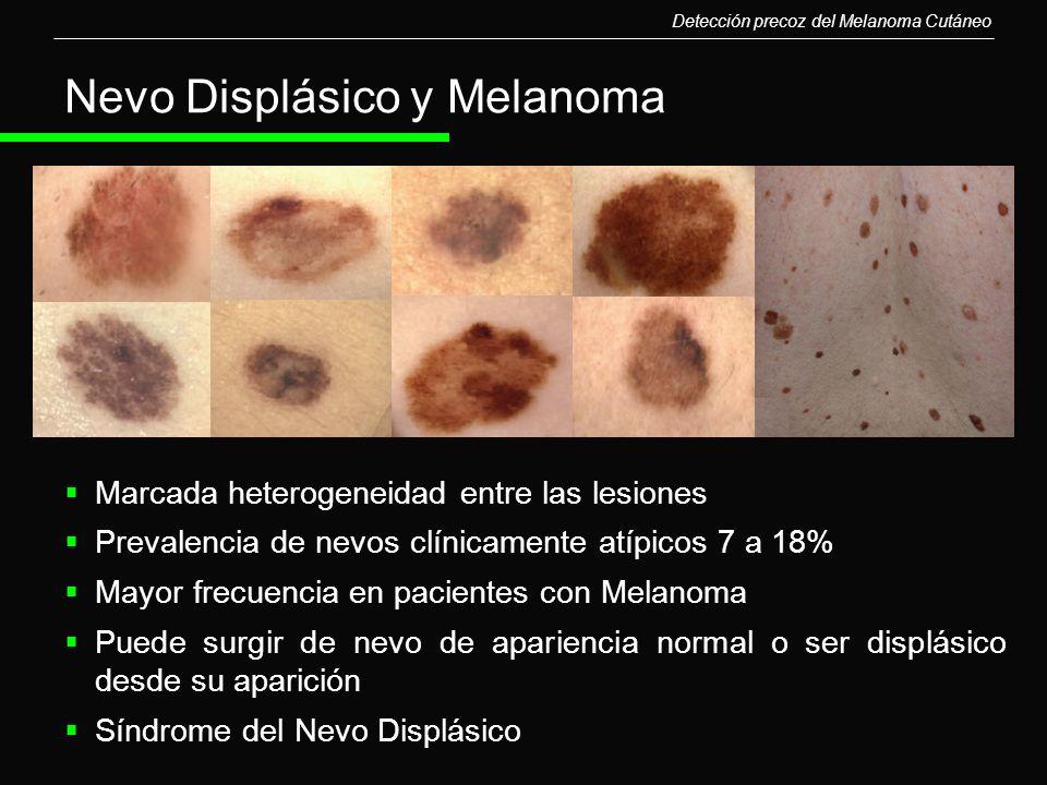 Nevo Displásico y Melanoma Detección precoz del Melanoma Cutáneo Marcada heterogeneidad entre las lesiones Prevalencia de nevos clínicamente atípicos