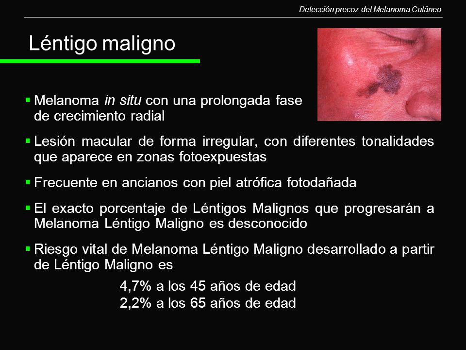 Melanoma in situ con una prolongada fase de crecimiento radial Lesión macular de forma irregular, con diferentes tonalidades que aparece en zonas foto
