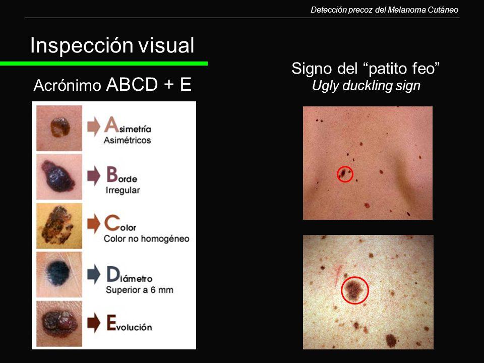 Detección precoz del Melanoma Cutáneo Acrónimo ABCD + E Signo del patito feo Ugly duckling sign