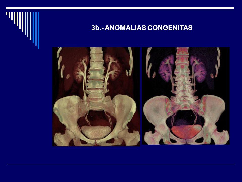 3b.- ANOMALIAS CONGENITAS