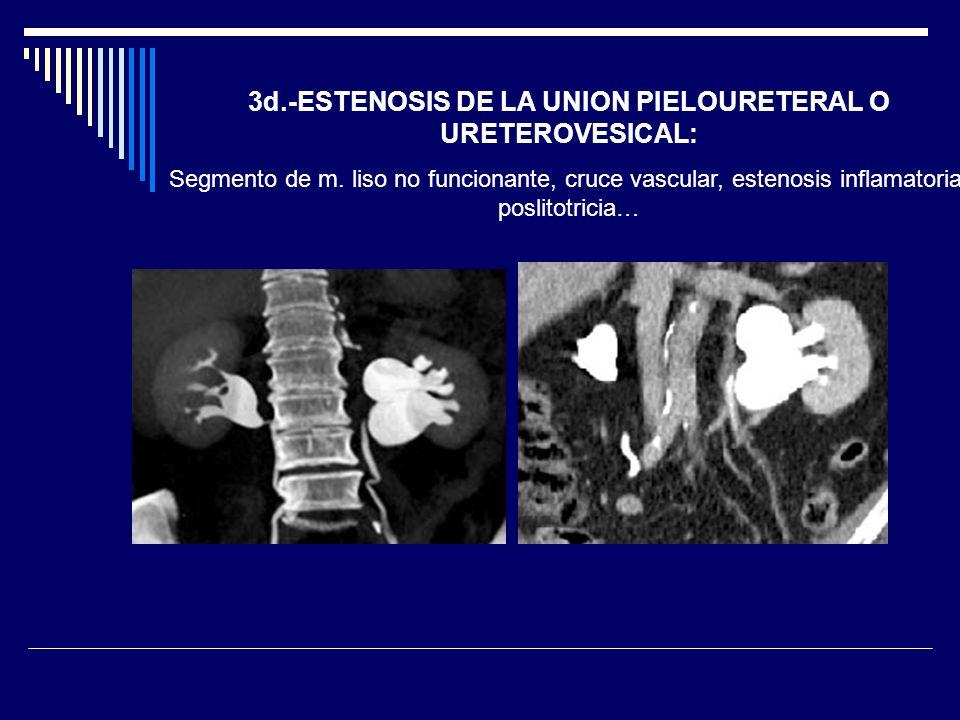 3d.-ESTENOSIS DE LA UNION PIELOURETERAL O URETEROVESICAL: Segmento de m. liso no funcionante, cruce vascular, estenosis inflamatoria, poslitotricia…