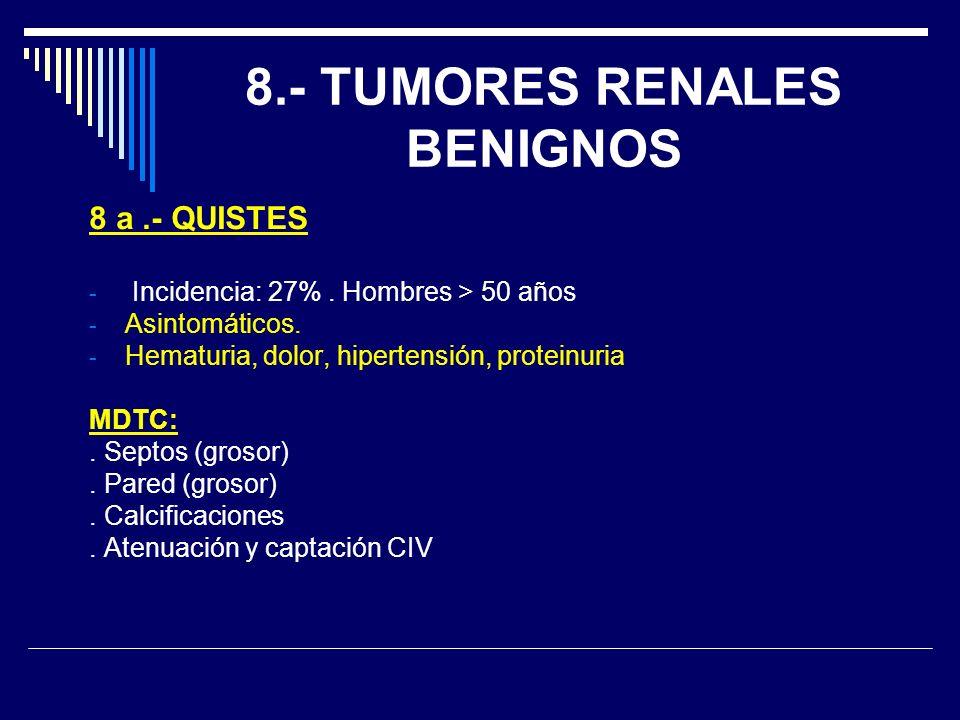 8.- TUMORES RENALES BENIGNOS 8 a.- QUISTES - Incidencia: 27%. Hombres > 50 años - Asintomáticos. - Hematuria, dolor, hipertensión, proteinuria MDTC:.