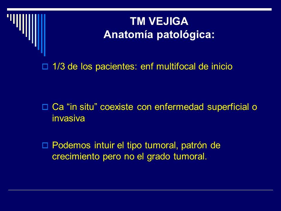 1/3 de los pacientes: enf multifocal de inicio Ca in situ coexiste con enfermedad superficial o invasiva Podemos intuir el tipo tumoral, patrón de cre
