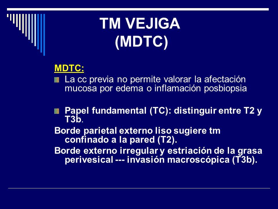 TM VEJIGA (MDTC) MDTC: La cc previa no permite valorar la afectación mucosa por edema o inflamación posbiopsia Papel fundamental (TC): distinguir entr