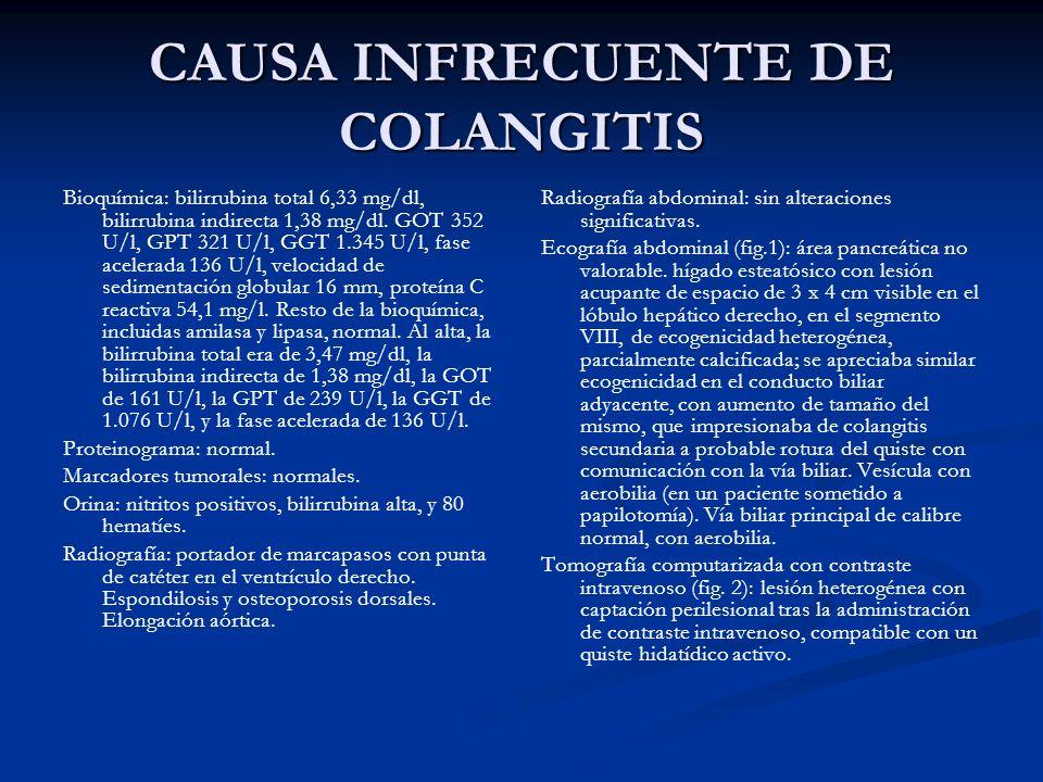 CAUSA INFRECUENTE DE COLANGITIS Bioquímica: bilirrubina total 6,33 mg/dl, bilirrubina indirecta 1,38 mg/dl. GOT 352 U/l, GPT 321 U/l, GGT 1.345 U/l, f