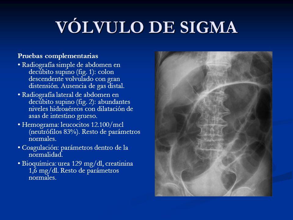 VÓLVULO DE SIGMA Pruebas complementarias Radiografía simple de abdomen en decúbito supino (fig. 1): colon descendente volvulado con gran distensión. A