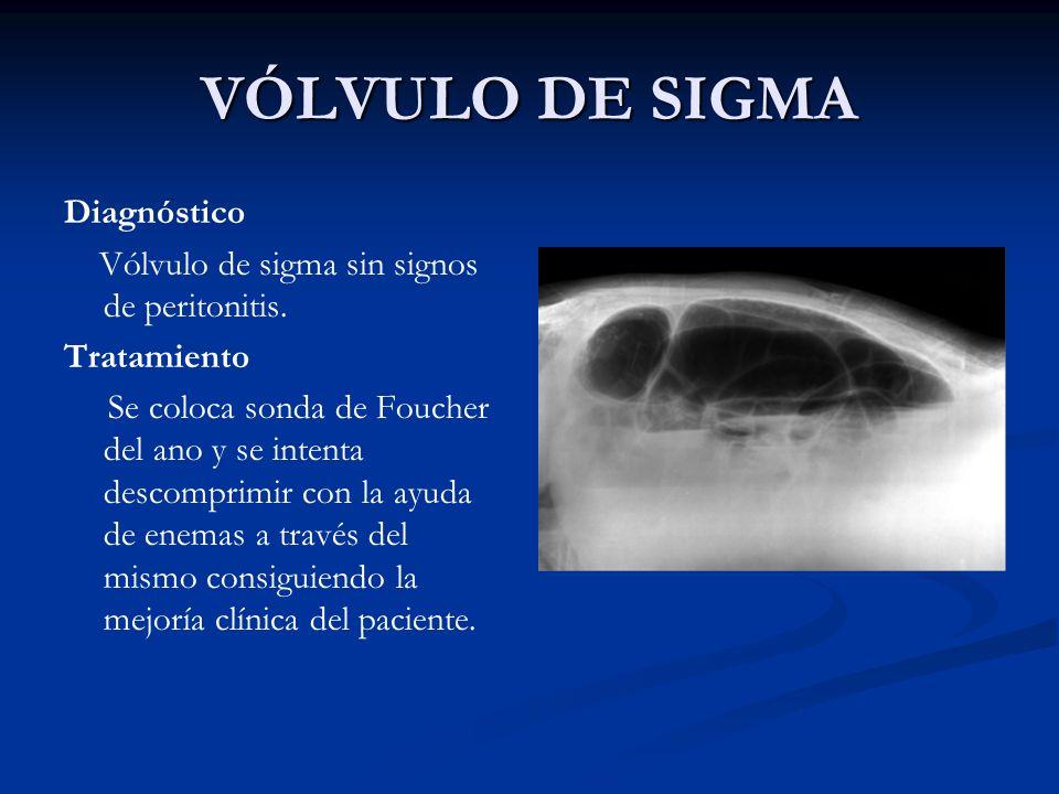 VÓLVULO DE SIGMA Diagnóstico Vólvulo de sigma sin signos de peritonitis. Tratamiento Se coloca sonda de Foucher del ano y se intenta descomprimir con