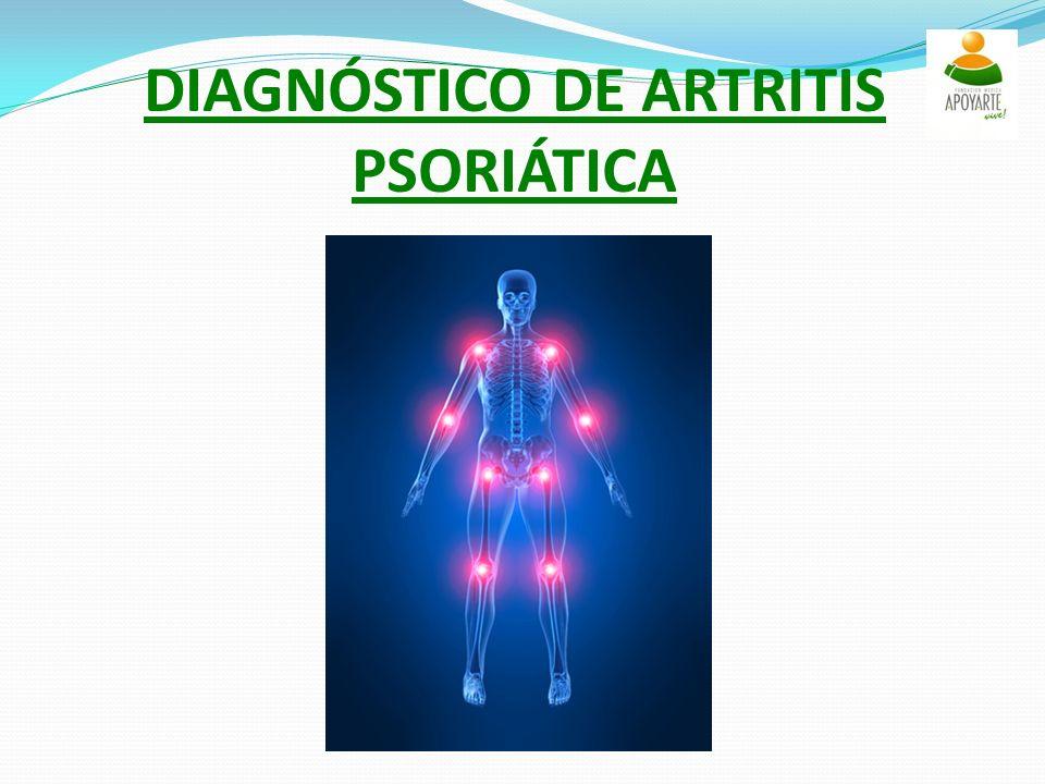 DIAGNÓSTICO DE ARTRITIS PSORIÁTICA