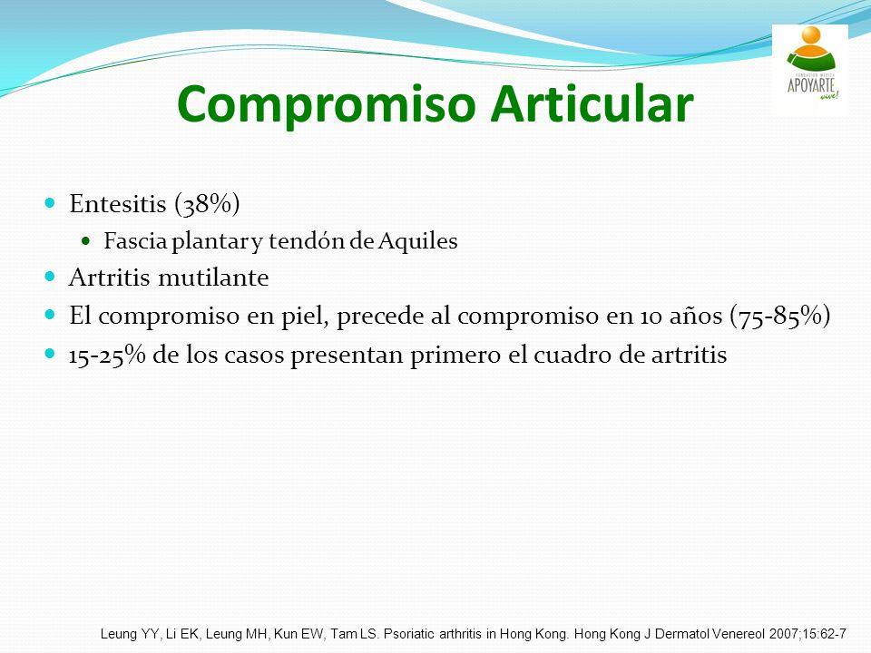 Compromiso Articular Entesitis (38%) Fascia plantar y tendón de Aquiles Artritis mutilante El compromiso en piel, precede al compromiso en 10 años (75-85%) 15-25% de los casos presentan primero el cuadro de artritis Leung YY, Li EK, Leung MH, Kun EW, Tam LS.