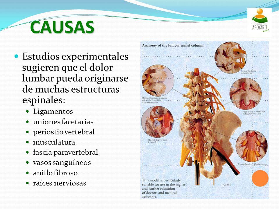 CAUSAS Estudios experimentales sugieren que el dolor lumbar pueda originarse de muchas estructuras espinales: Ligamentos uniones facetarias periostio vertebral musculatura fascia paravertebral vasos sanguíneos anillo fibroso raíces nerviosas