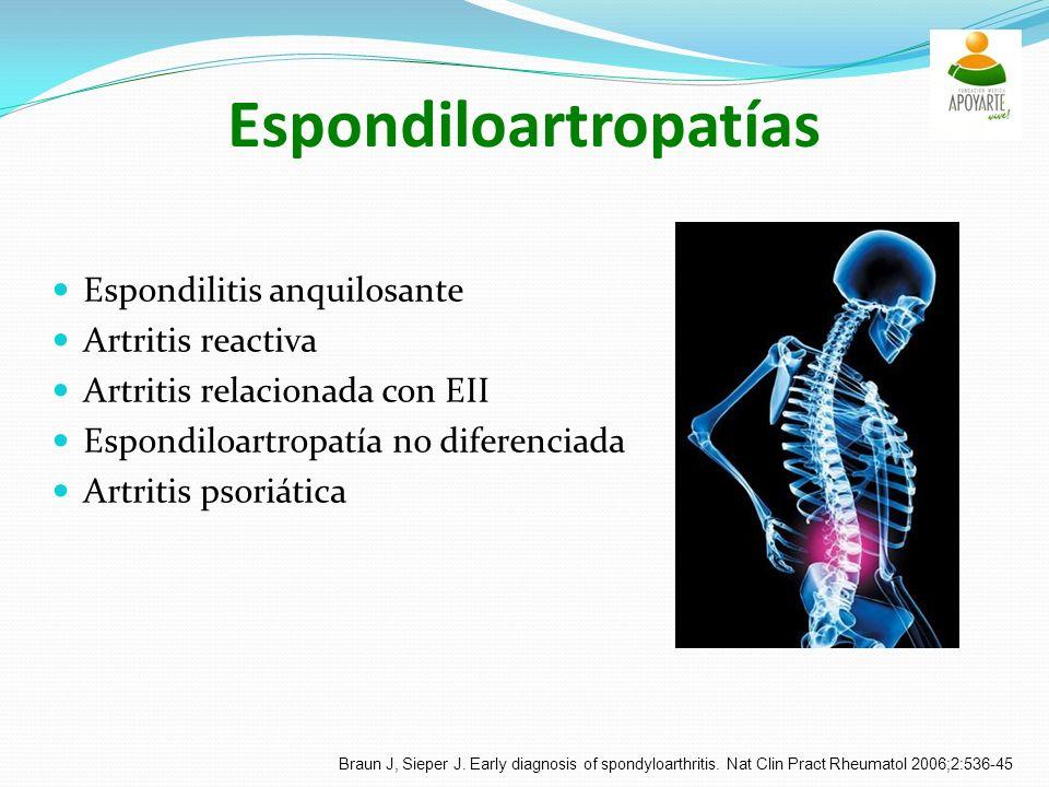 Espondiloartropatías Espondilitis anquilosante Artritis reactiva Artritis relacionada con EII Espondiloartropatía no diferenciada Artritis psoriática Braun J, Sieper J.