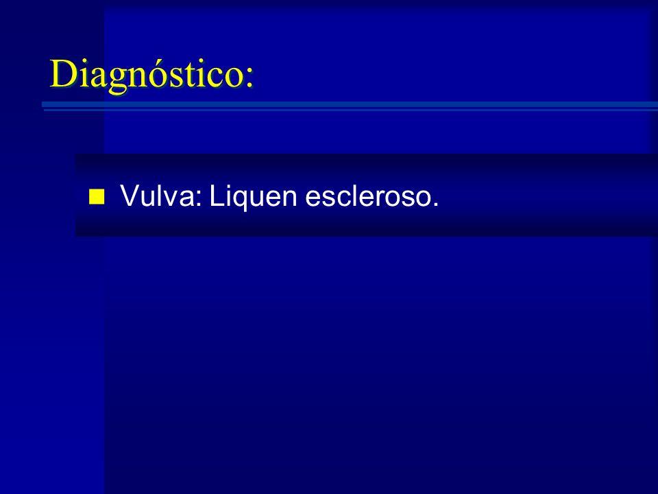 Diagnóstico: Vulva: Liquen escleroso.