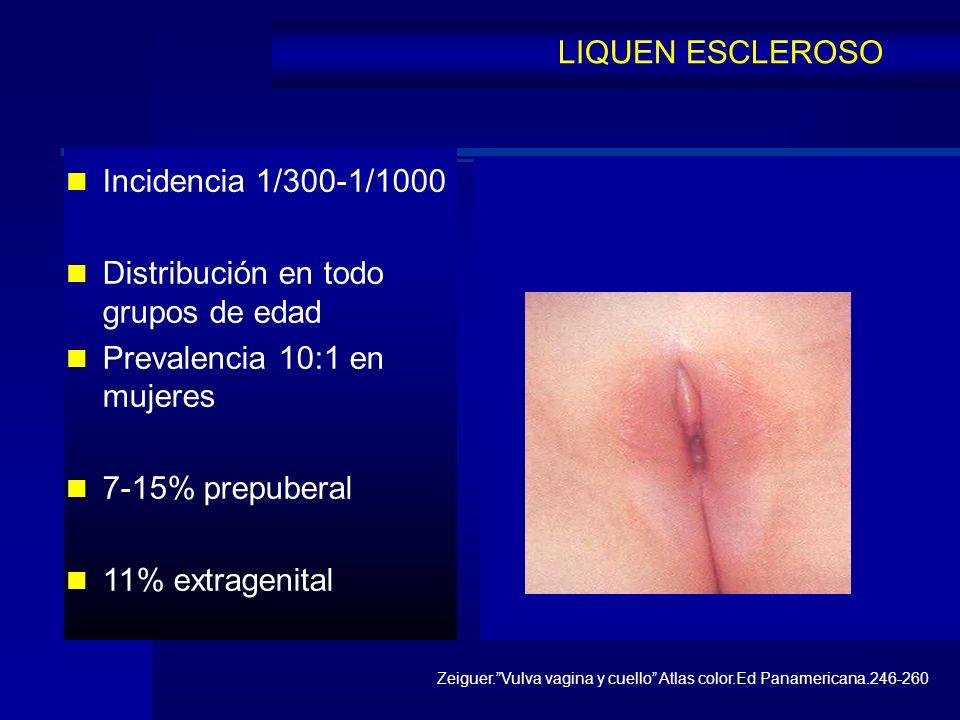 Incidencia 1/300-1/1000 Distribución en todo grupos de edad Prevalencia 10:1 en mujeres 7-15% prepuberal 11% extragenital LIQUEN ESCLEROSO Zeiguer.Vul