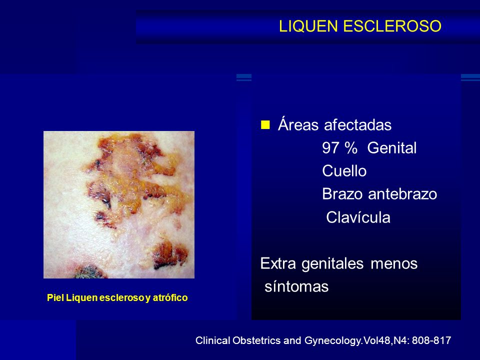 LIQUEN ESCLEROSO Áreas afectadas 97 % Genital Cuello Brazo antebrazo Clavícula Extra genitales menos síntomas Clinical Obstetrics and Gynecology.Vol48