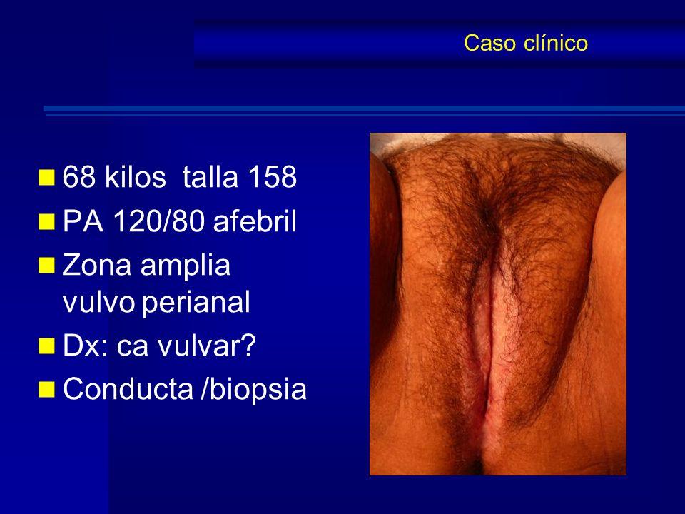68 kilos talla 158 PA 120/80 afebril Zona amplia vulvo perianal Dx: ca vulvar? Conducta /biopsia Caso clínico