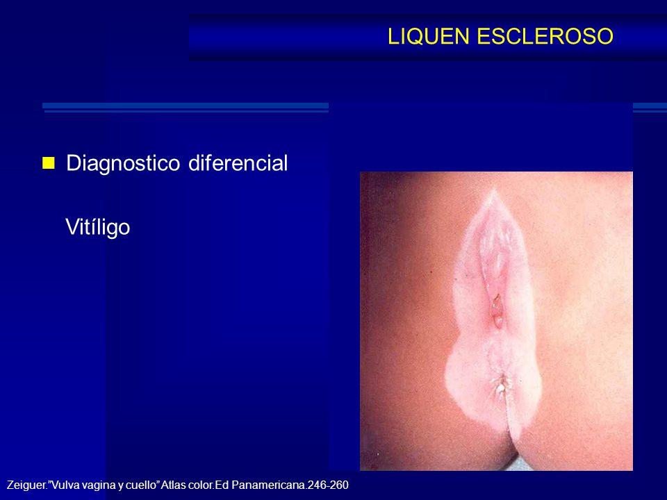 Diagnostico diferencial Vitíligo LIQUEN ESCLEROSO Zeiguer.Vulva vagina y cuello Atlas color.Ed Panamericana.246-260