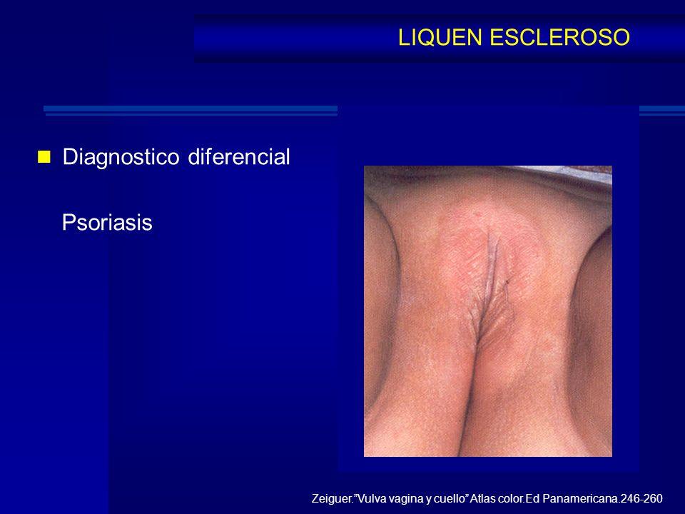 Diagnostico diferencial Psoriasis LIQUEN ESCLEROSO Zeiguer.Vulva vagina y cuello Atlas color.Ed Panamericana.246-260
