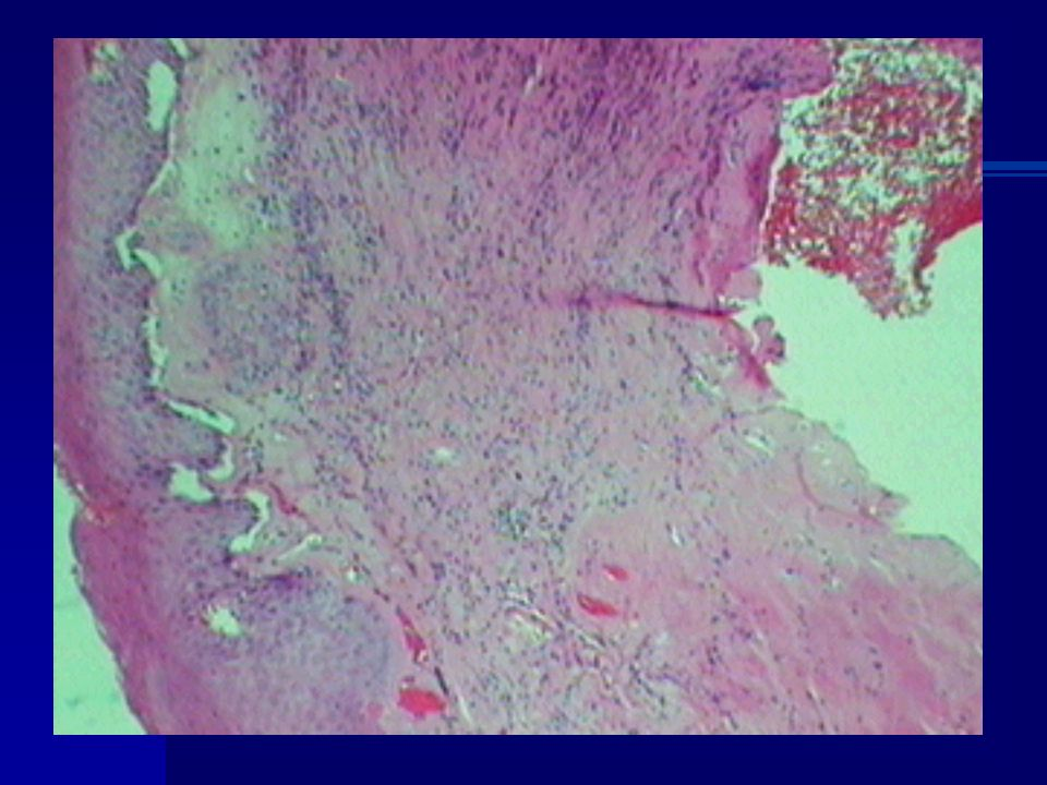 LIQUEN ESCLEROSO Áreas afectadas 97 % Genital Cuello Brazo antebrazo Clavícula Extra genitales menos síntomas Clinical Obstetrics and Gynecology.Vol48,N4: 808-817 Piel Liquen escleroso y atrófico