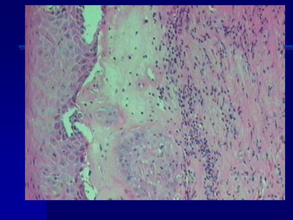 Diagnóstico diferencial: Liquen simple crónicoLiquen plano Liquen escleroso