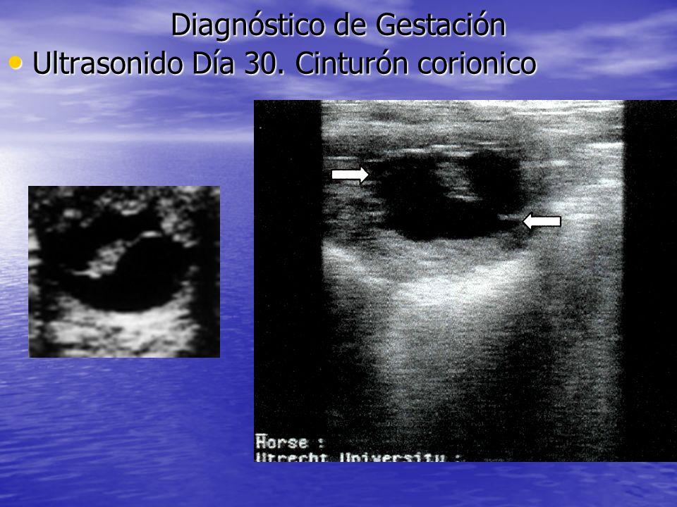 Diagnóstico de Gestación Ultrasonido Día 30. Cinturón corionico Ultrasonido Día 30. Cinturón corionico