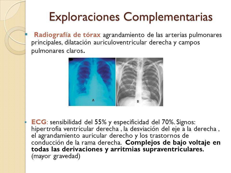 Exploraciones Complementarias Radiografía de tórax agrandamiento de las arterias pulmonares principales, dilatación auriculoventricular derecha y camp