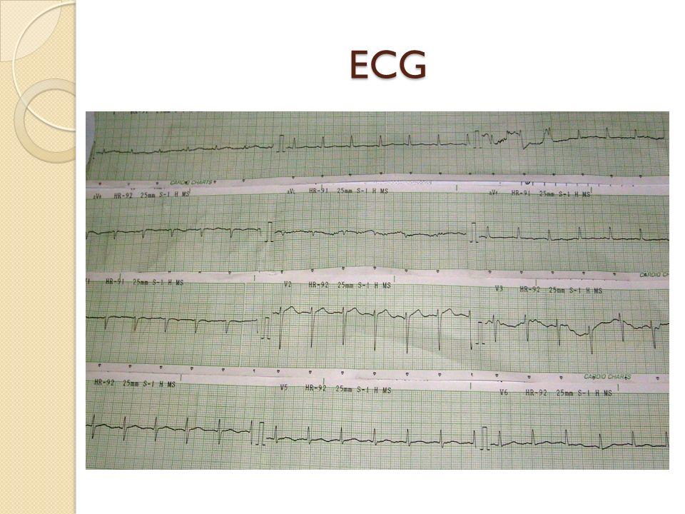 Angiografía pulmonar: Arteria pulmonar: 35/16 mmhg (pre- estudio) 40/18 mmhg (post- estudio) Hipertensión pulmonar leve.