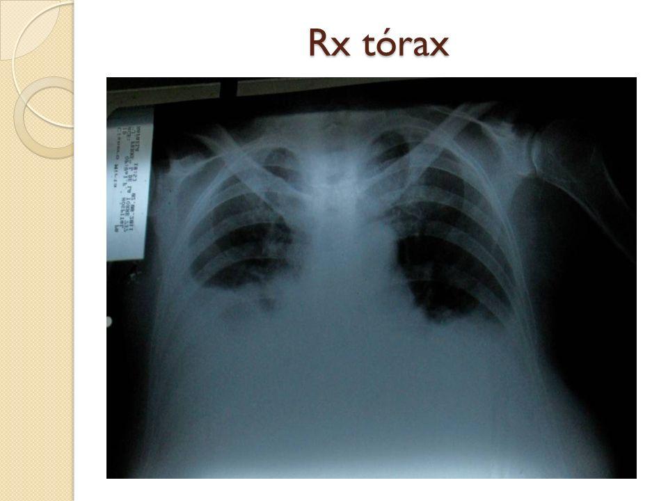 Tratamiento Los pacientes deben permanecer anticoagulados de por vida con un RIN de 2 a 3.
