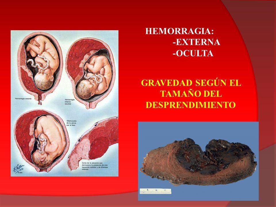 HEMORRAGIA: -EXTERNA -OCULTA GRAVEDAD SEGÚN EL TAMAÑO DEL DESPRENDIMIENTO