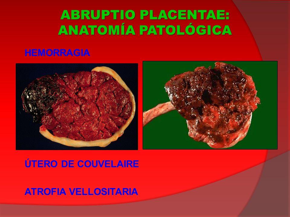 HEMORRAGIA ÚTERO DE COUVELAIRE ATROFIA VELLOSITARIA ABRUPTIO PLACENTAE: ANATOMÍA PATOLÓGICA
