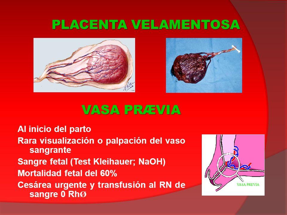 Al inicio del parto Rara visualización o palpación del vaso sangrante Sangre fetal (Test Kleihauer; NaOH) Mortalidad fetal del 60% Cesárea urgente y t
