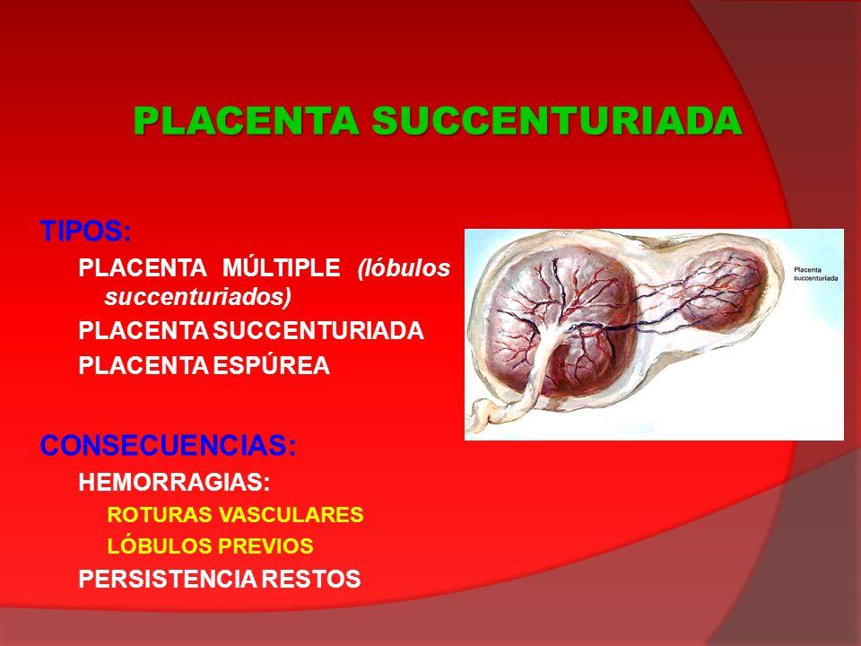 TIPOS: PLACENTA MÚLTIPLE (lóbulos succenturiados) PLACENTA SUCCENTURIADA PLACENTA ESPÚREA CONSECUENCIAS: HEMORRAGIAS: ROTURAS VASCULARES LÓBULOS PREVI
