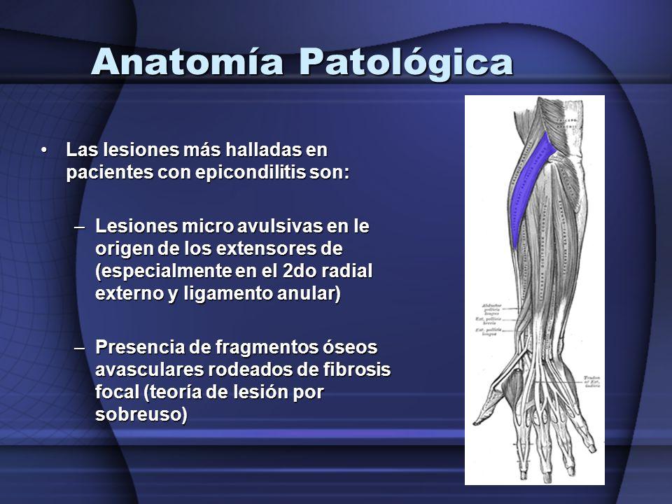 Anatomía Patológica Las lesiones más halladas en pacientes con epicondilitis son:Las lesiones más halladas en pacientes con epicondilitis son: –Lesion