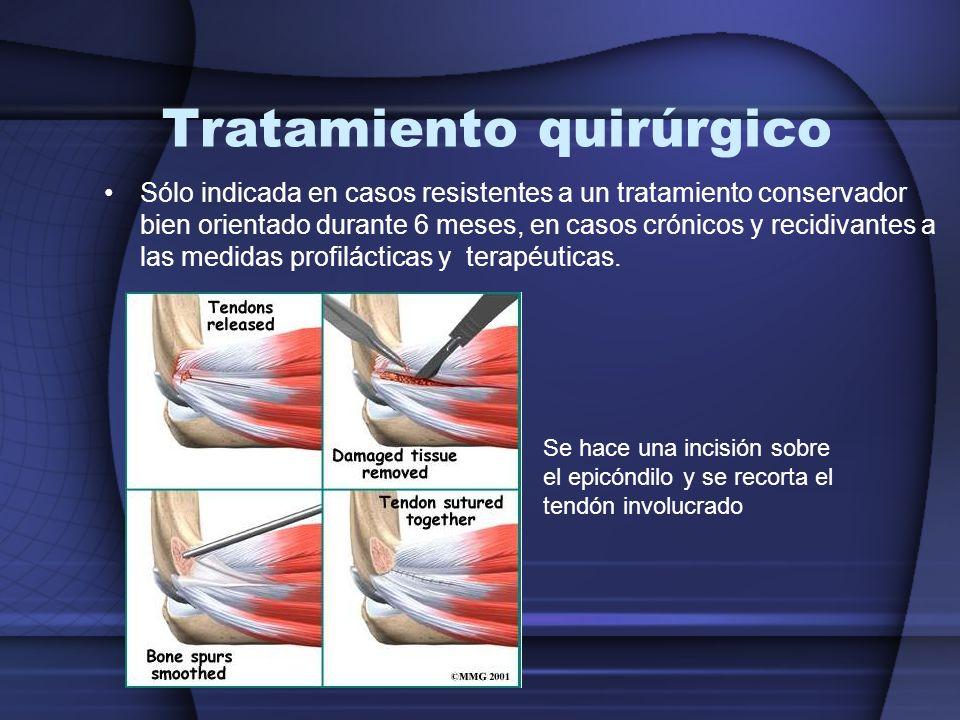 Tratamiento quirúrgico Sólo indicada en casos resistentes a un tratamiento conservador bien orientado durante 6 meses, en casos crónicos y recidivante
