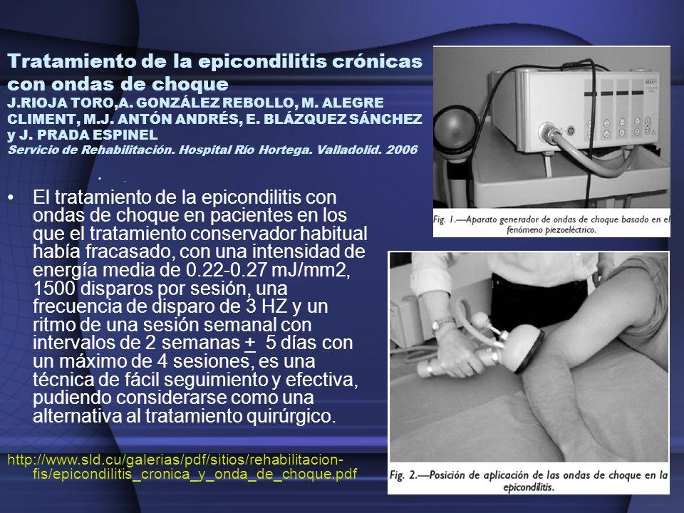 Tratamiento de la epicondilitis crónicas con ondas de choque J.RIOJA TORO,A. GONZÁLEZ REBOLLO, M. ALEGRE CLIMENT, M.J. ANTÓN ANDRÉS, E. BLÁZQUEZ SÁNCH