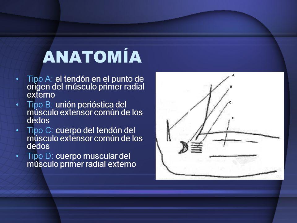 ANATOMÍA Tipo A: el tendón en el punto de origen del músculo primer radial externo Tipo B: unión perióstica del músculo extensor común de los dedos Ti