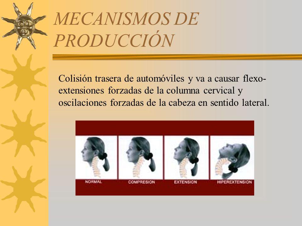 MECANISMOS DE PRODUCCIÓN Colisión trasera de automóviles y va a causar flexo- extensiones forzadas de la columna cervical y oscilaciones forzadas de l