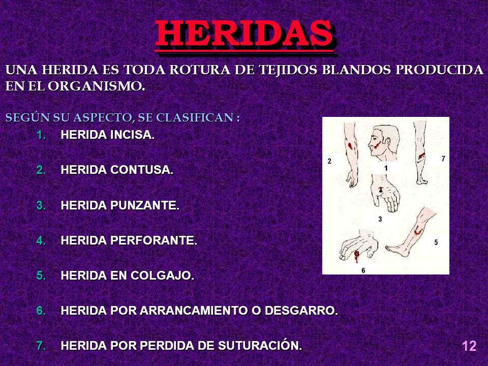 HERIDASHERIDAS UNA HERIDA ES TODA ROTURA DE TEJIDOS BLANDOS PRODUCIDA EN EL ORGANISMO. SEGÚN SU ASPECTO, SE CLASIFICAN : 1.HERIDA INCISA. 2.HERIDA CON
