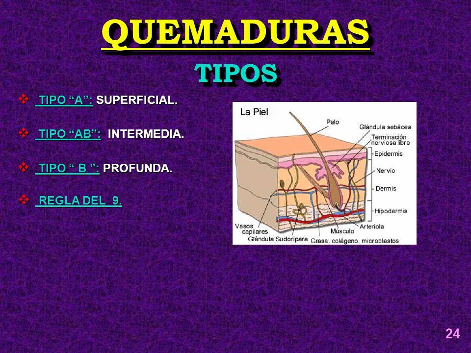 QUEMADURASQUEMADURAS TIPOSTIPOS TIPO A: SUPERFICIAL. TIPO A: SUPERFICIAL. TIPO AB: INTERMEDIA. TIPO AB: INTERMEDIA. TIPO B : PROFUNDA. TIPO B : PROFUN