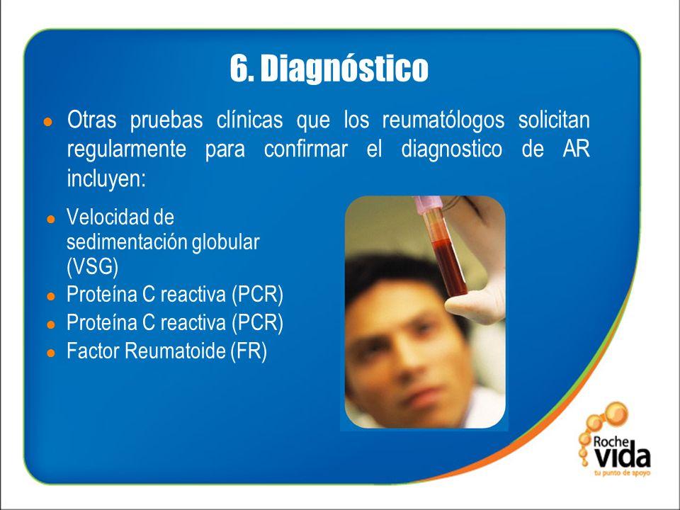 6. Diagnóstico Velocidad de sedimentación globular (VSG) Proteína C reactiva (PCR) Factor Reumatoide (FR) Otras pruebas clínicas que los reumatólogos