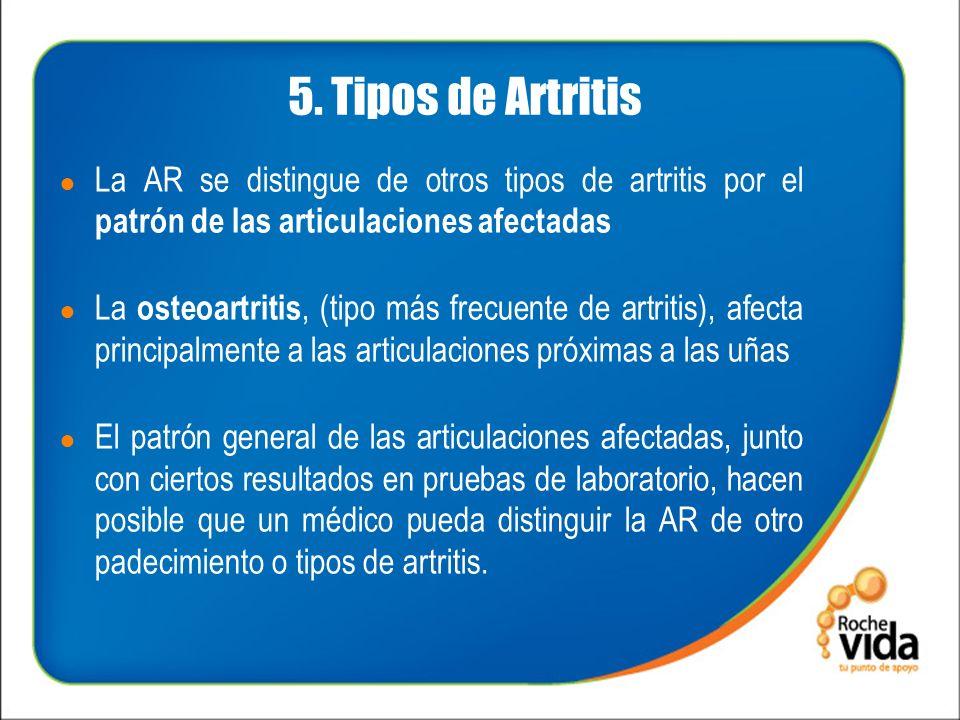 5. Tipos de Artritis La AR se distingue de otros tipos de artritis por el patrón de las articulaciones afectadas La osteoartritis, (tipo más frecuente