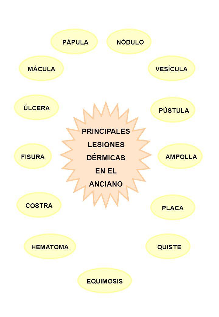 PRINCIPALES LESIONES DÉRMICAS EN EL ANCIANO EQUIMOSIS QUISTE PLACA AMPOLLA HEMATOMA FISURA PÚSTULA MÁCULA PÁPULANÓDULO VESÍCULA COSTRA ÚLCERA