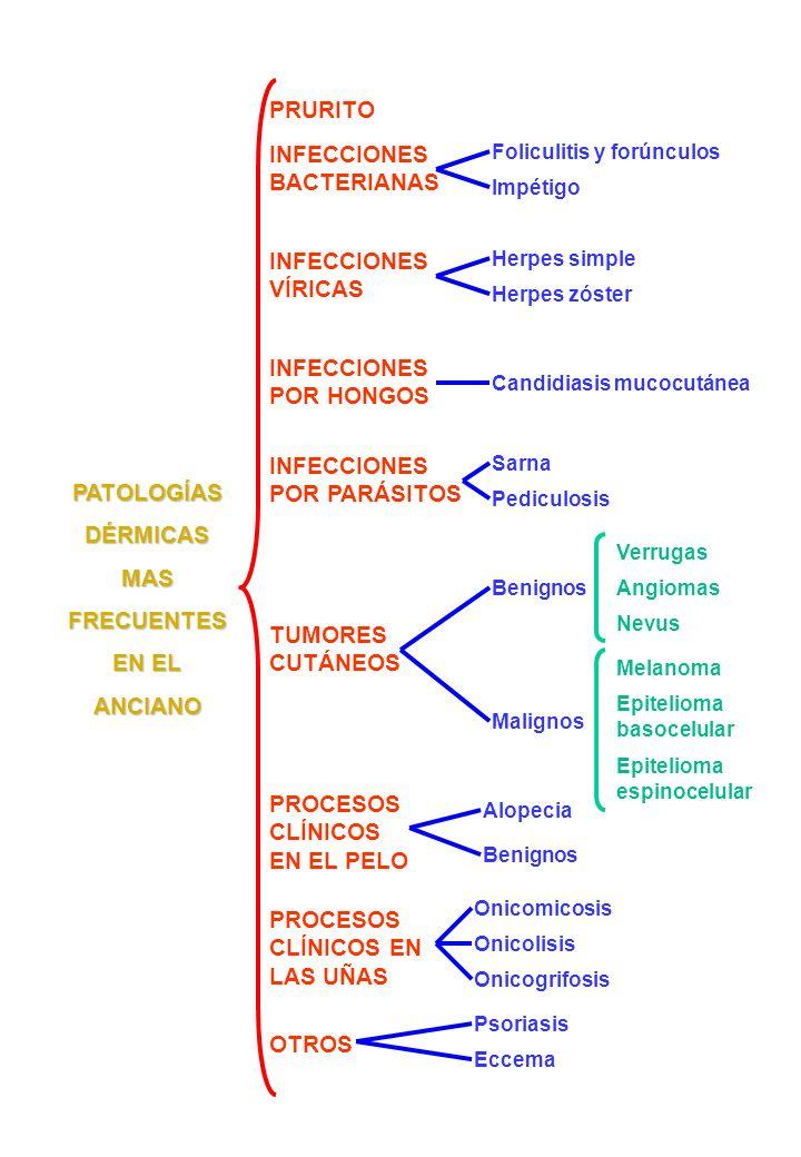 PATOLOGÍAS DÉRMICAS MAS FRECUENTES EN EL ANCIANO PRURITO INFECCIONES BACTERIANAS INFECCIONES VÍRICAS INFECCIONES POR HONGOS INFECCIONES POR PARÁSITOS TUMORES CUTÁNEOS PROCESOS CLÍNICOS EN EL PELO PROCESOS CLÍNICOS EN LAS UÑAS OTROS Foliculitis y forúnculos Impétigo Herpes simple Herpes zóster Candidiasis mucocutánea Benignos Malignos Sarna Pediculosis Verrugas Angiomas Nevus Epitelioma basocelular Melanoma Epitelioma espinocelular Alopecia Benignos Onicomicosis Onicolisis Onicogrifosis Psoriasis Eccema