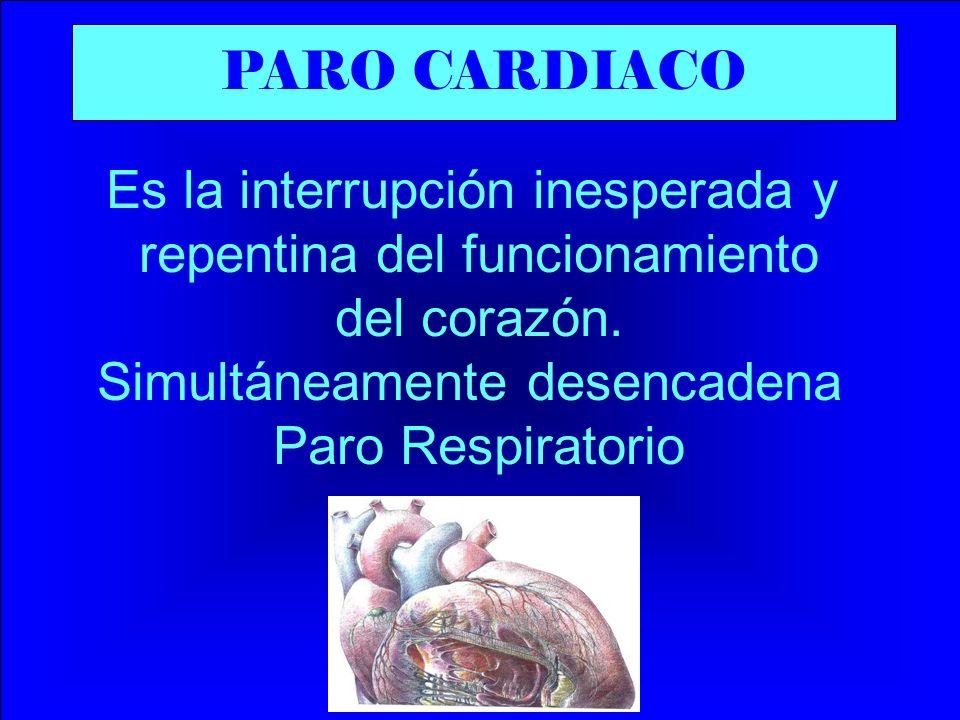 CAUSAS PARO CARDIACO Las causas más comunes son: -Infarto miocardio (IAM) -Enfermedades coronarias -Shock -Traumatismo encéfalo craneano (TEC) -Electrocución -Hemorragias severas