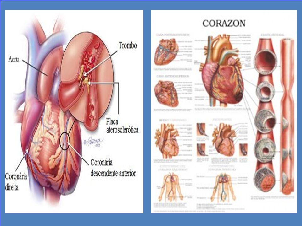 Efectiva presión sobre el corazón. Compresión Descompresión