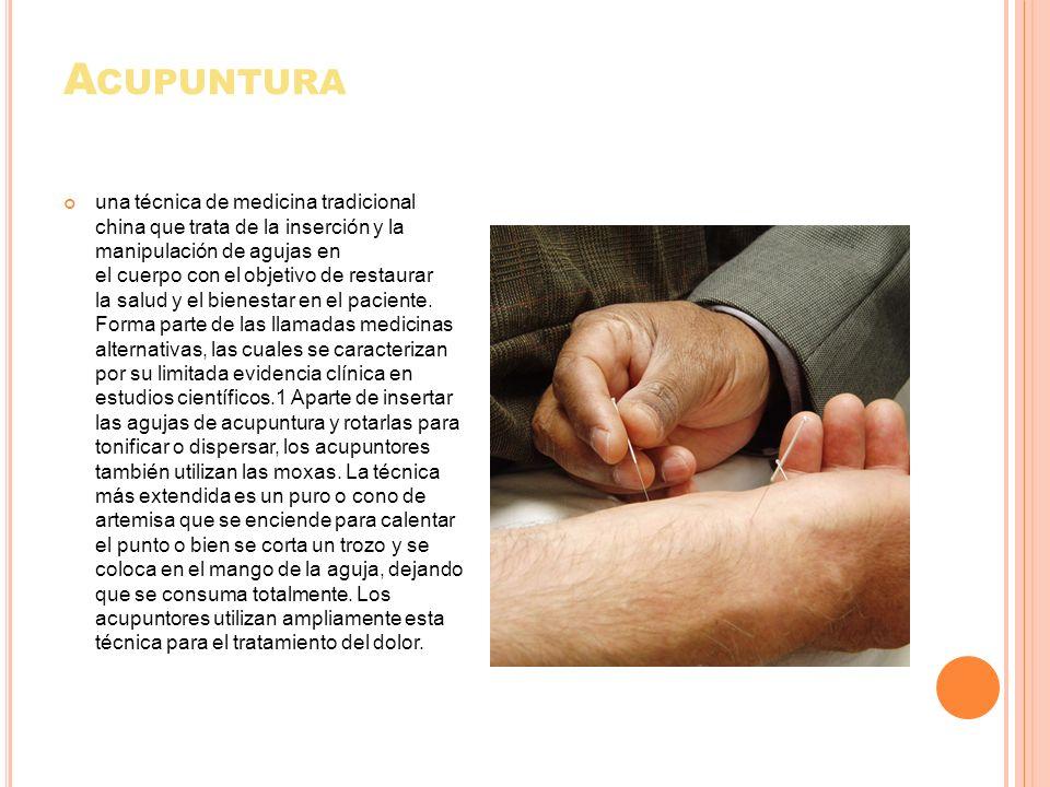 A CUPUNTURA una técnica de medicina tradicional china que trata de la inserción y la manipulación de agujas en el cuerpo con el objetivo de restaurar
